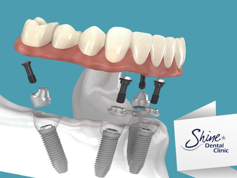 Shine Dental - all on 4 implants image1 v2