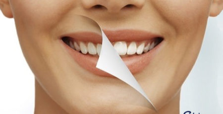Are Teeth Whitening Procedures Safe Image 1