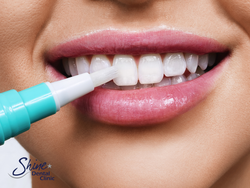 Are Teeth Whitening Procedures Safe Image 2